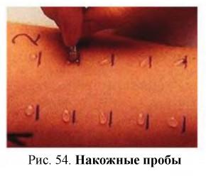 Глава 6. Клинические методы исследования иммунной системы