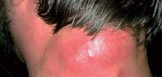 Рис. 79. Местные признаки воспаления.